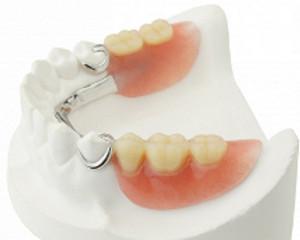 Dentures, Partial & Overdentures