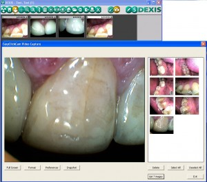 intraoral camera technology